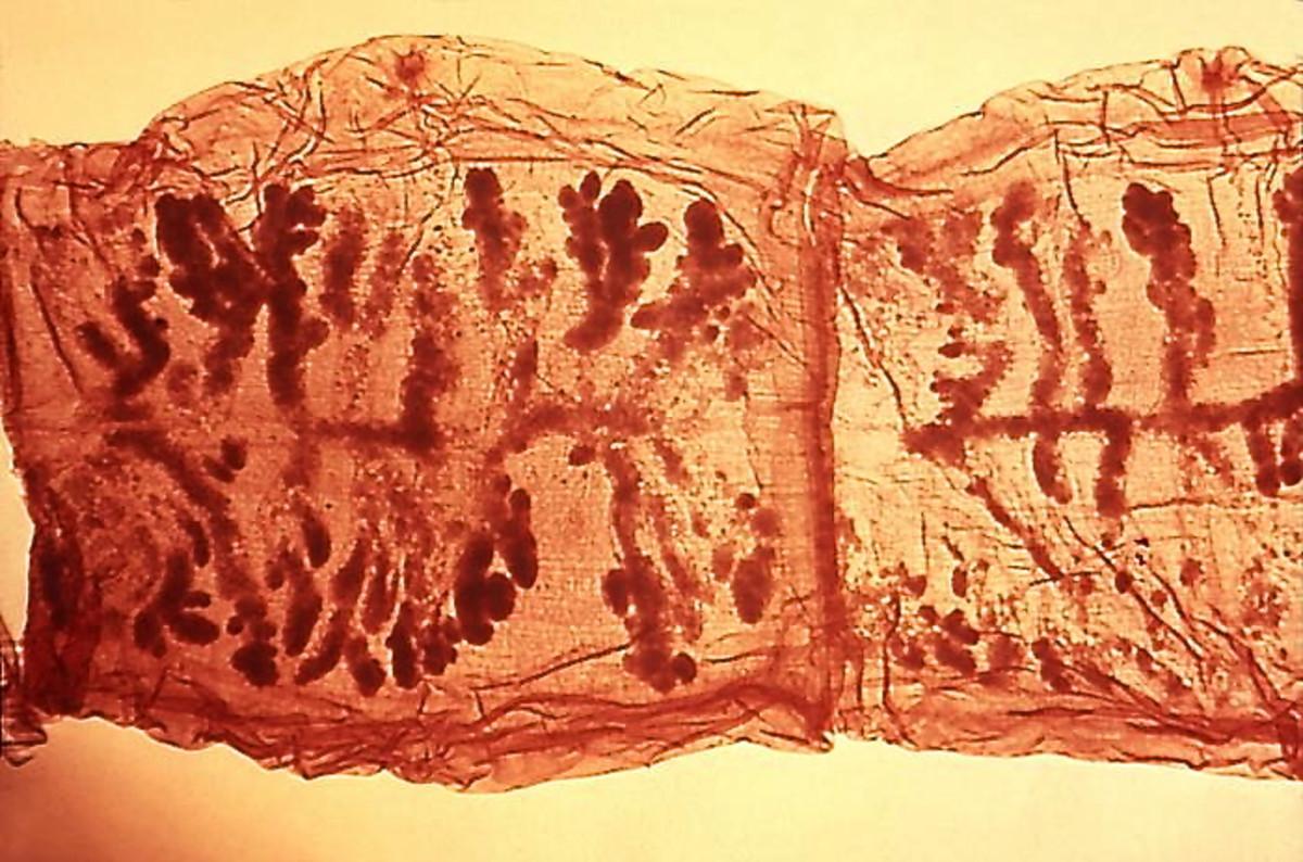 Pork tapeworm proglottids with a stain added