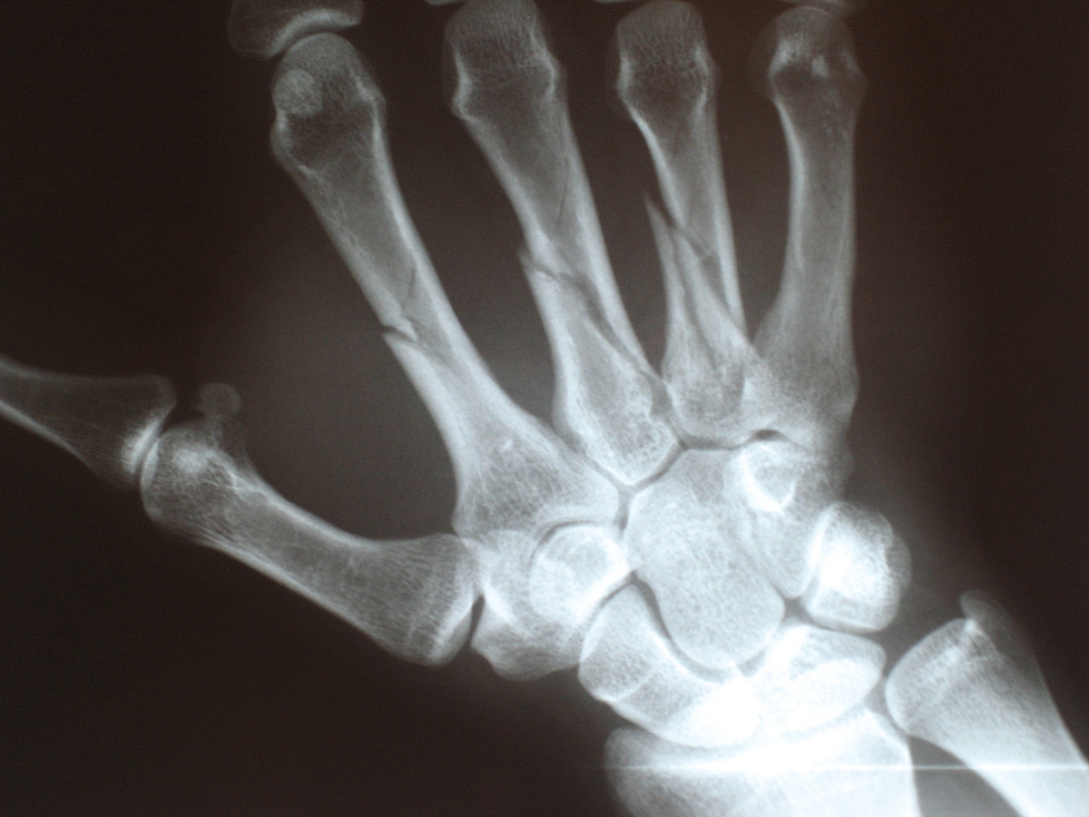 Hypercalcemia may lead to broken bones. The hand shown above has multiple fractures.