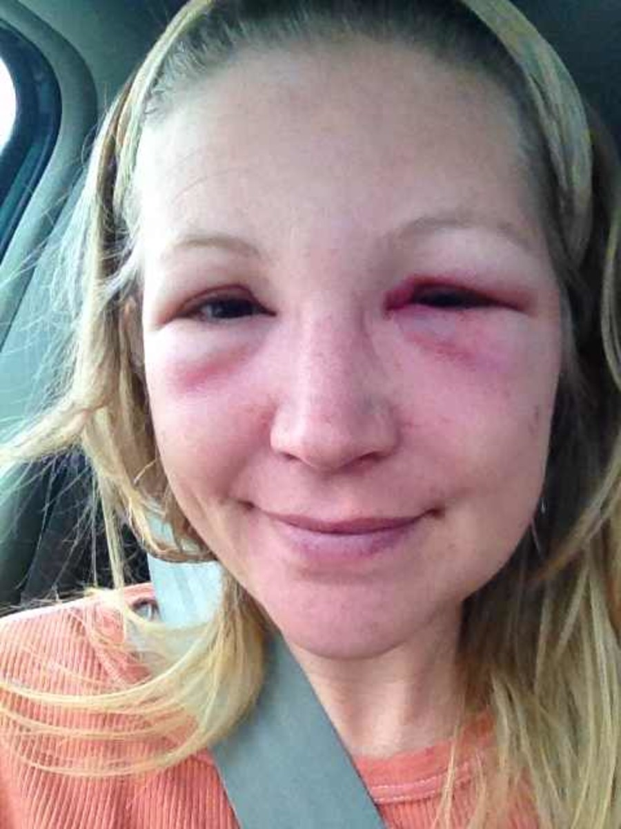 puffy swollen eyes allergies submited images