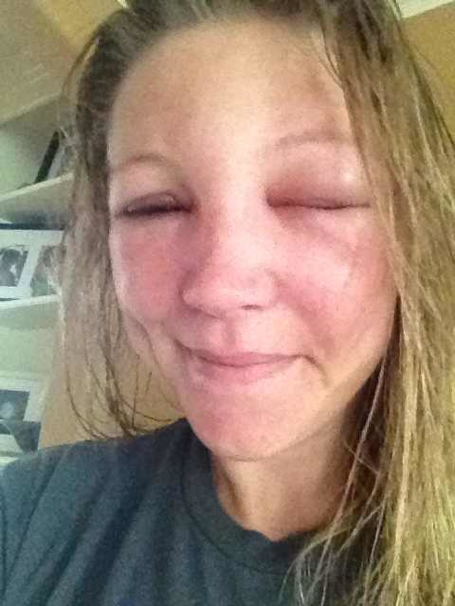 Eighteen hours after bee sting