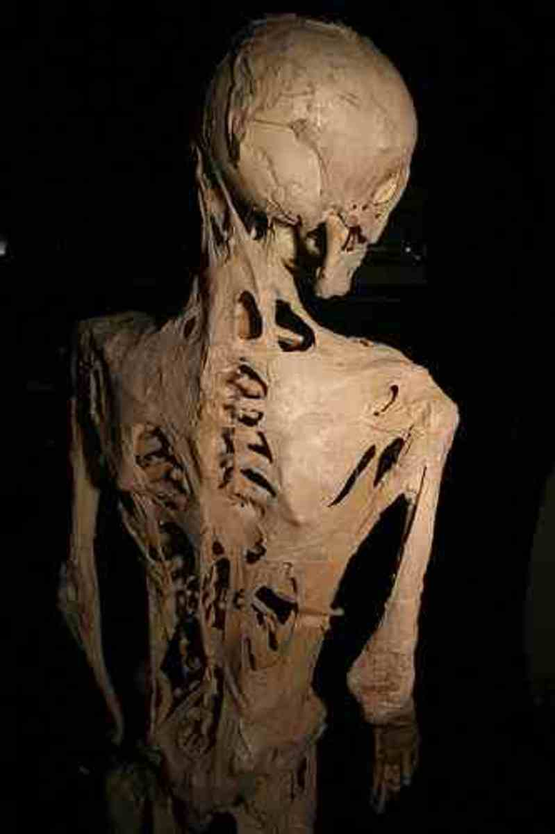 Harry Eastlack skeleton public domain