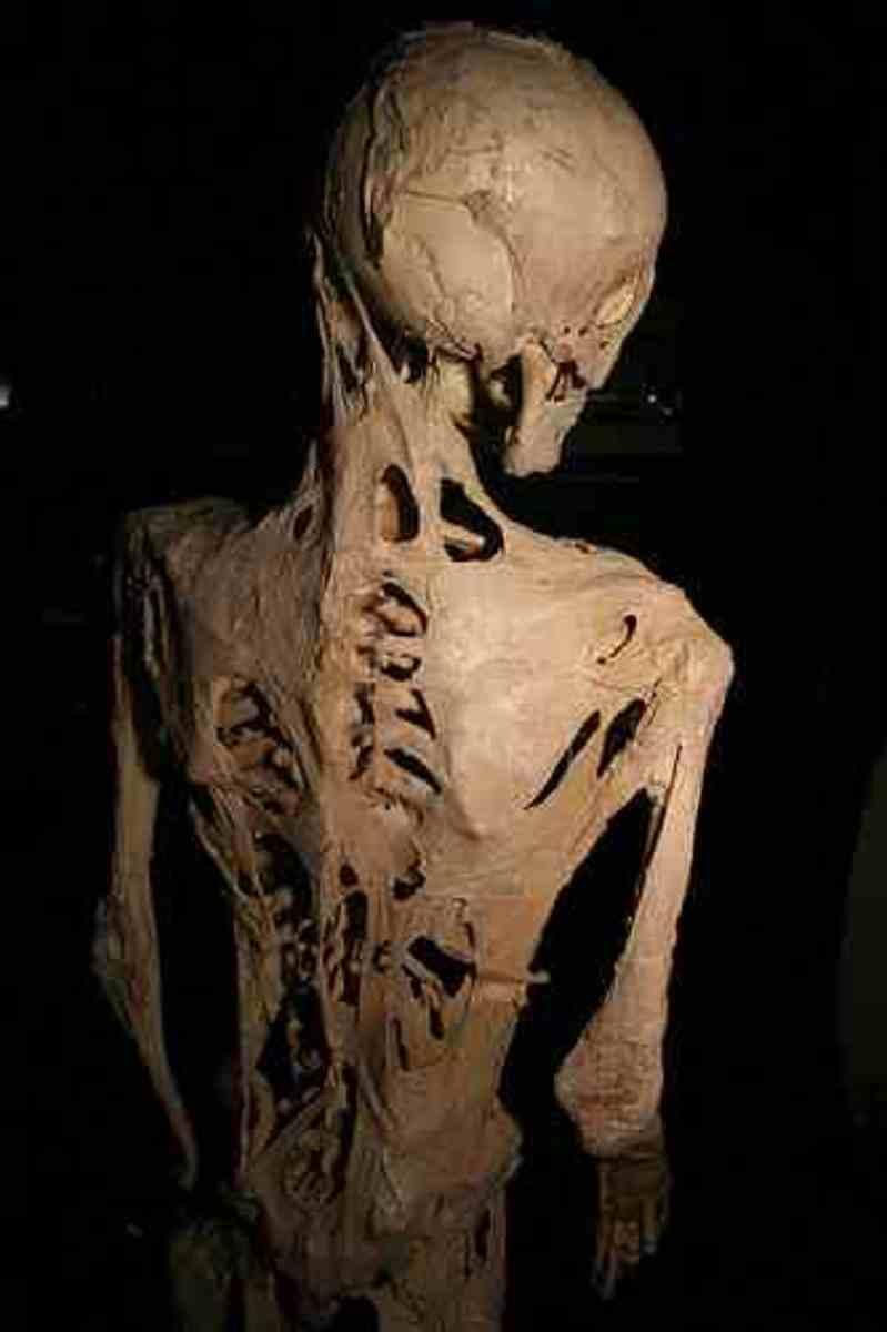 Skeleton of Harry Eastlack
