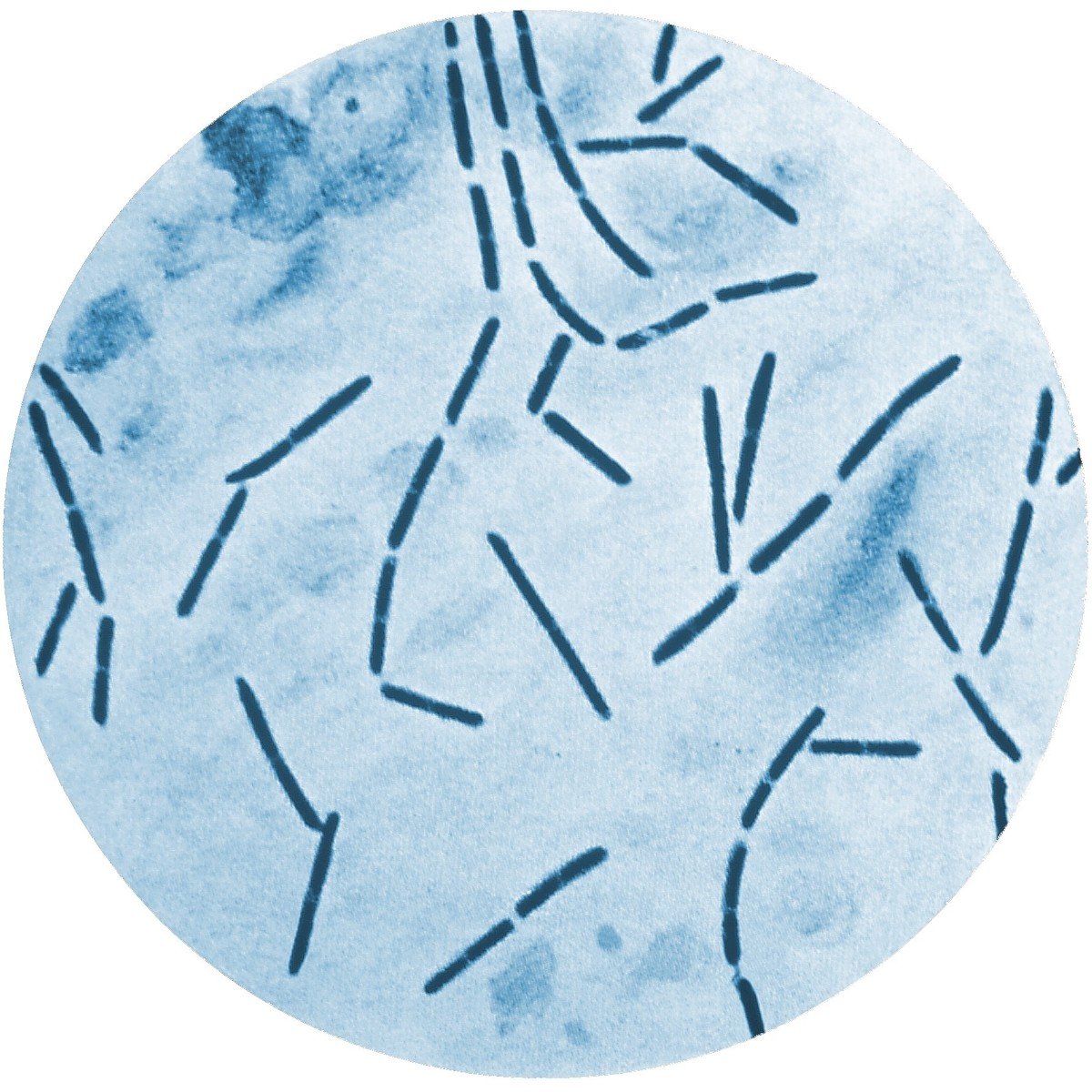 This is a slide of Clostridium septicum stained with methylene blue. The bacterium lives in our gut and can sometimes cause disease.