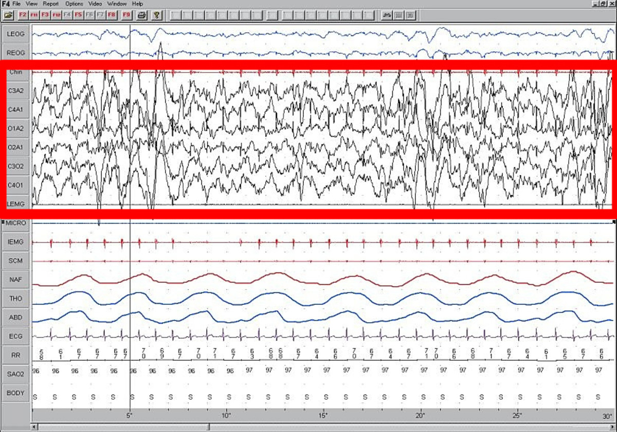 Slow wave sleep, as seen on this EEG, is indicative of a deep sleep. The sleeping person will be very difficult to rouse.