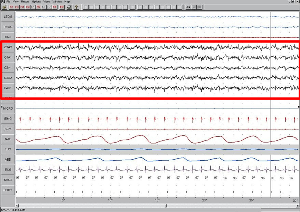 Stage 1 sleep is marked by alpha waves, which indicate a very light phase of sleep.