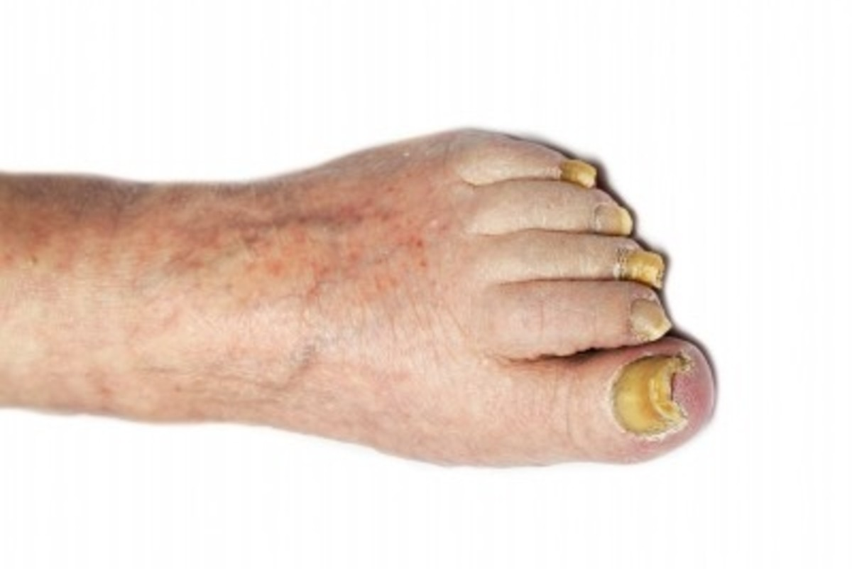 Untreated, fungal nail infections can spread to affect all your toenails.