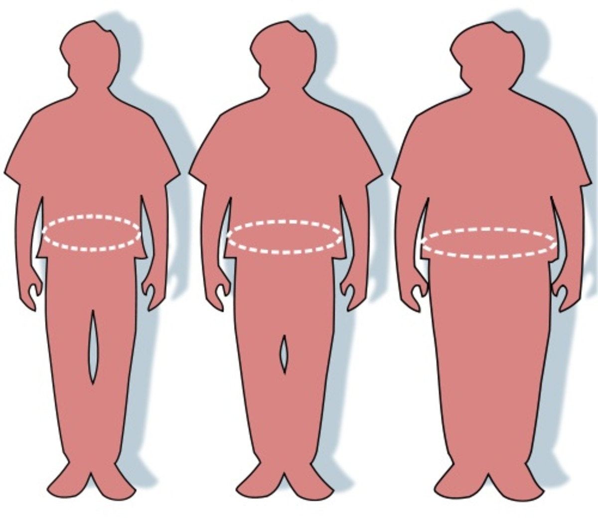 Abdominal obesity is the most serious type  with respect to health.