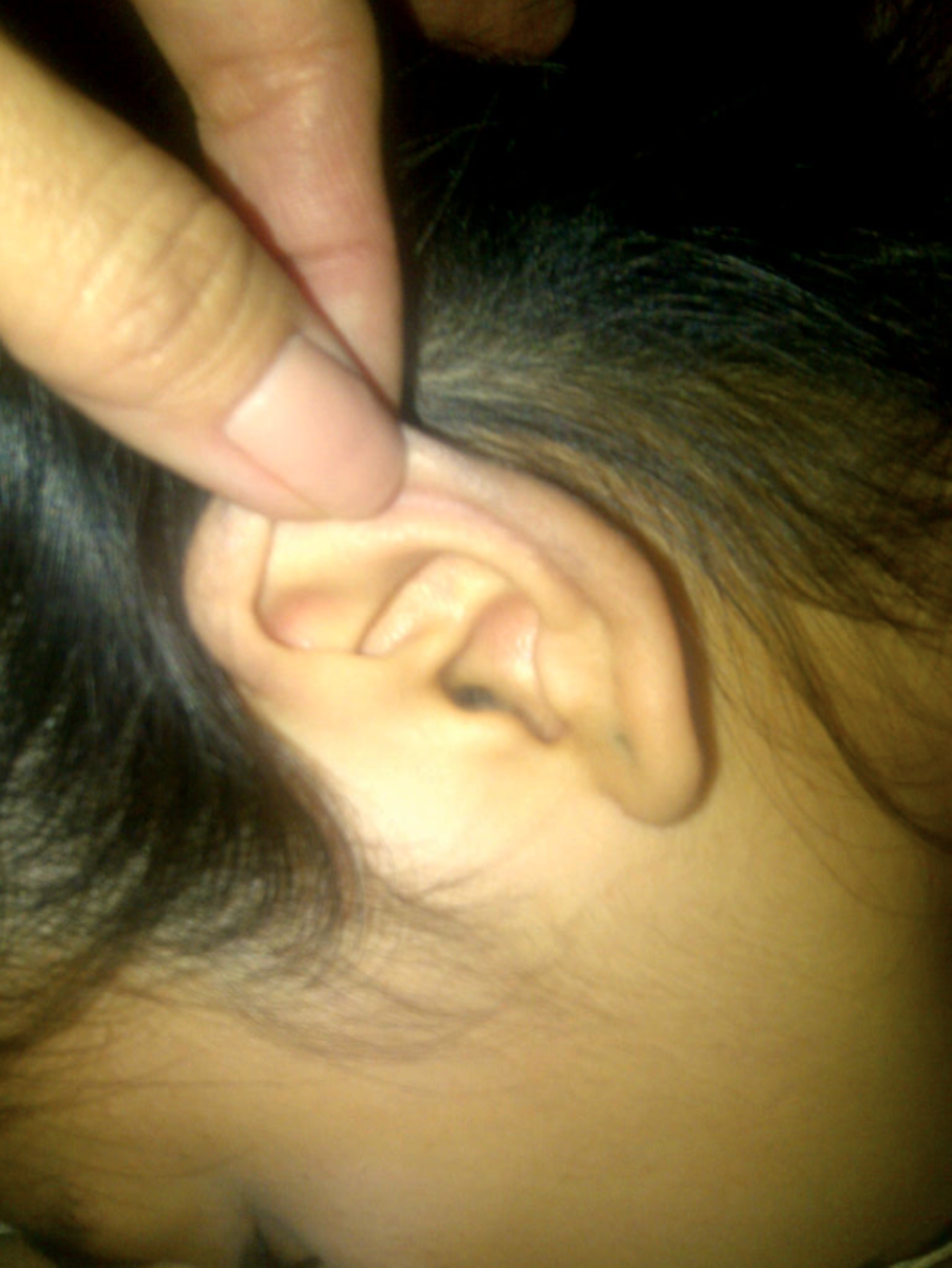 Keep calm, tilt your head to remove insect from ear.