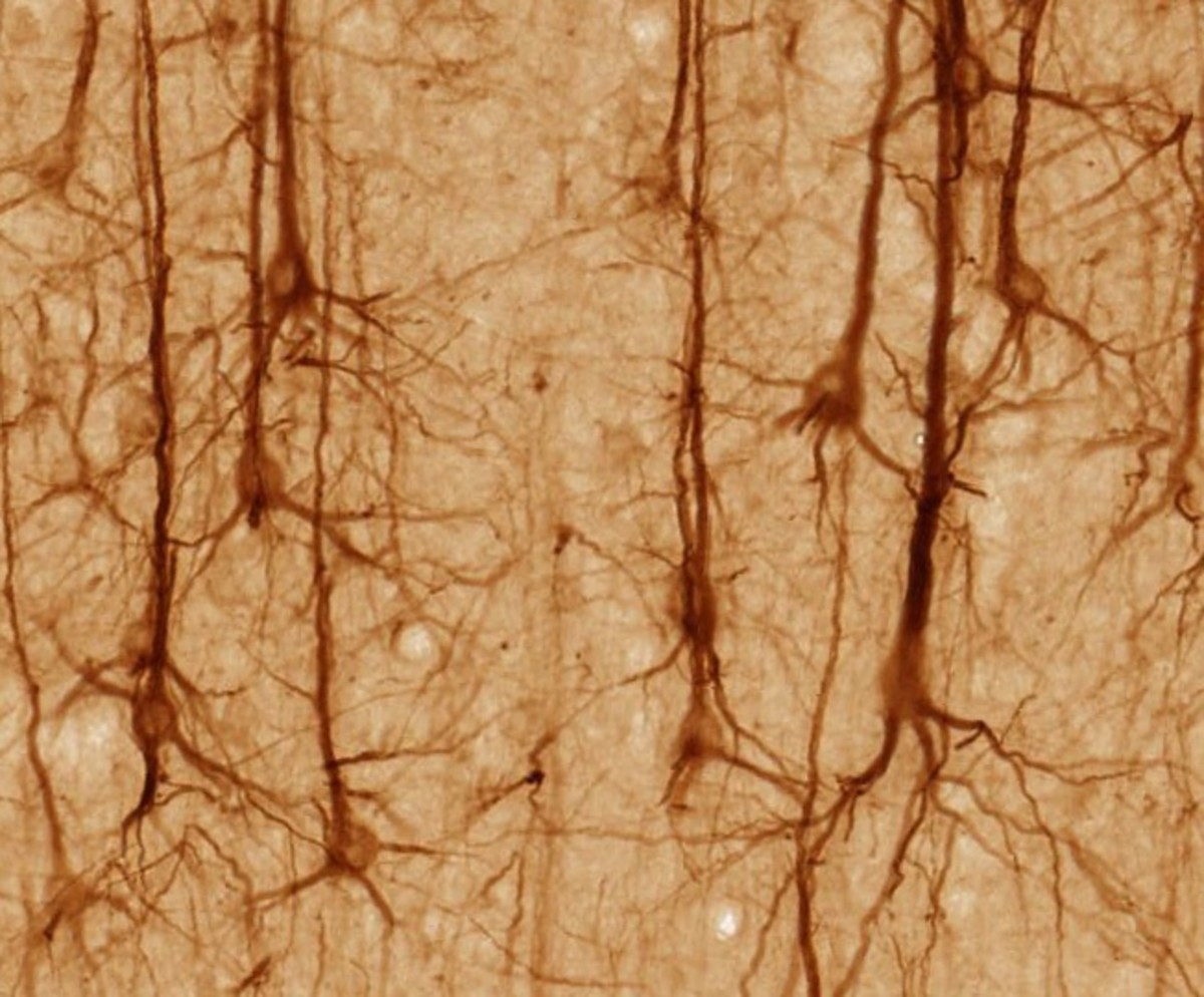 This screenshot shows stained neurons from the cerebral cortex of the brain. Carbon monoxide is found in brain neurons.