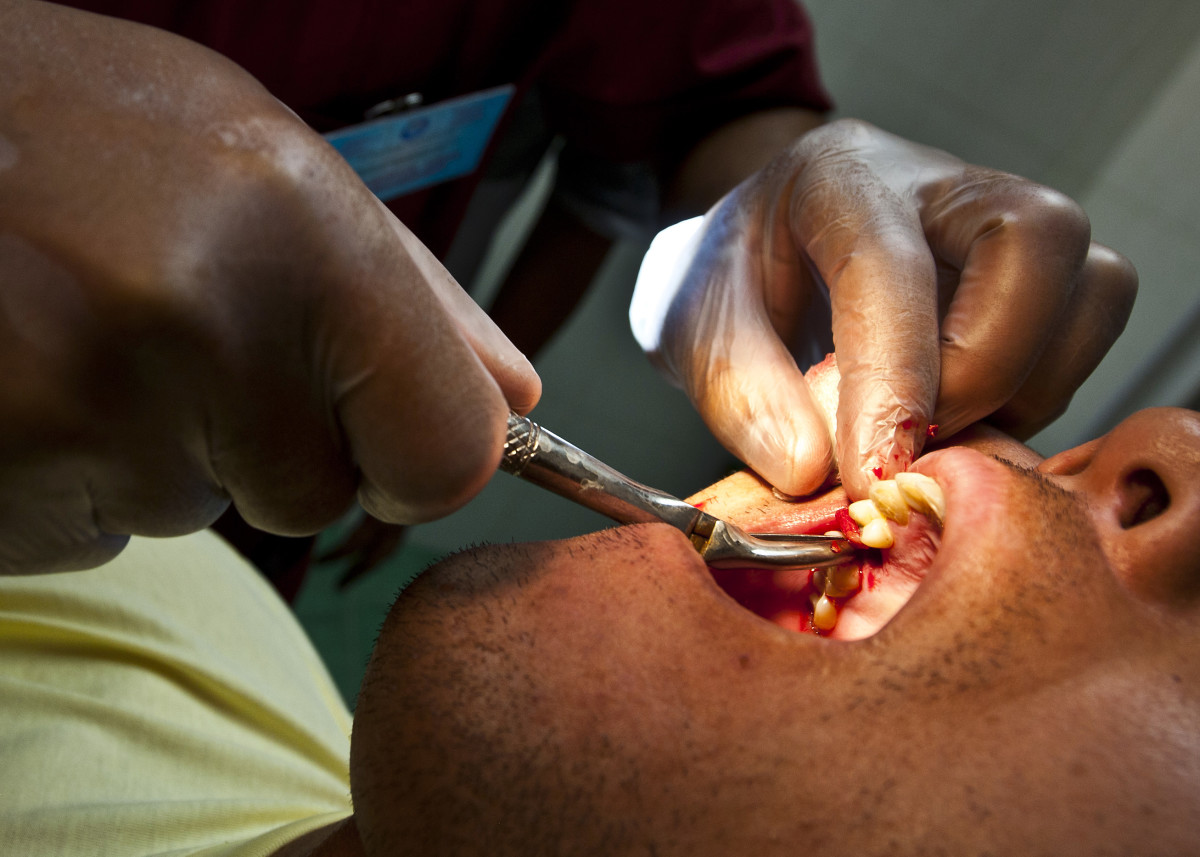 A dentist conducts an oral extraction.  Seeing this should make you brush and floss better.