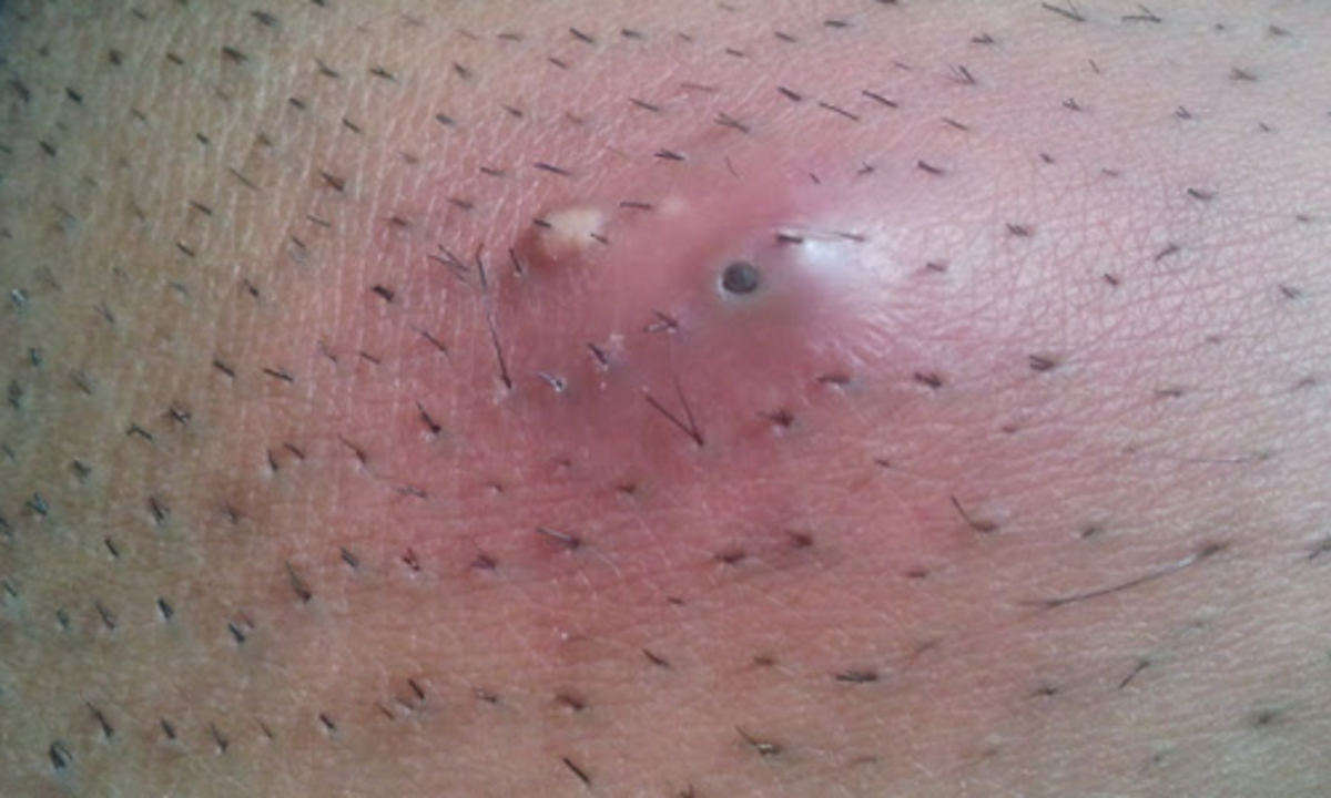 An ingrown hair. Sometimes, you can see the hair under the surface.