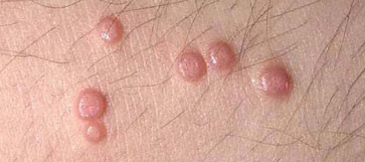 Vaginal warts: Skin-colored, itchy bumps, with the appearance of cauliflower, that are rough to the touch.