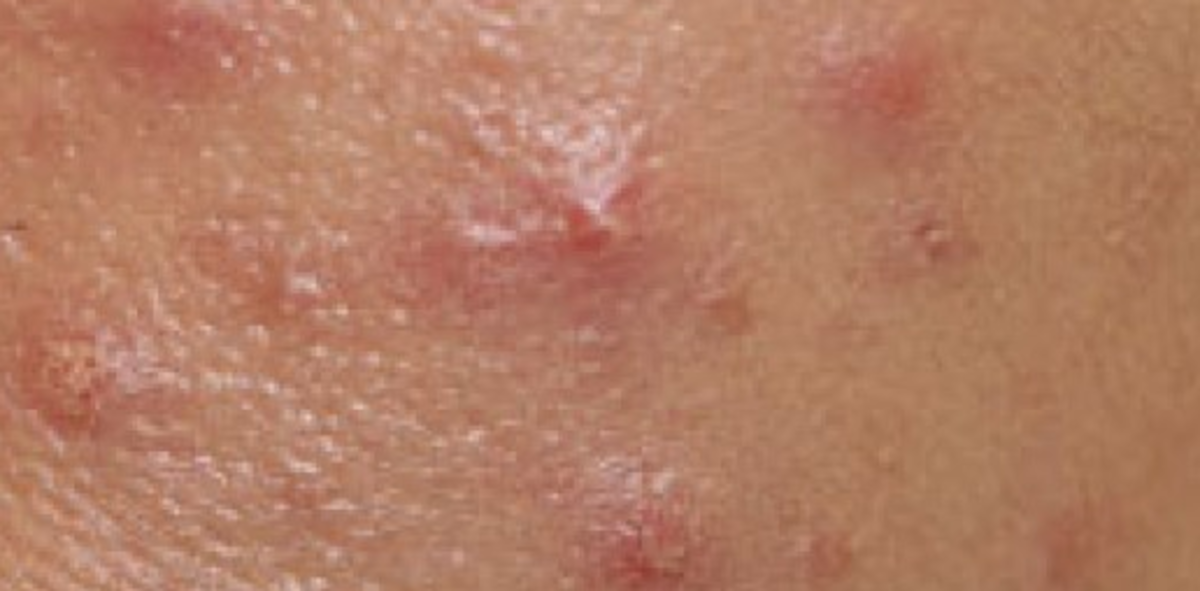 Vaginal / Vulval Acne: Vaginal pimples are like face pimples or those found elsewhere on the body.