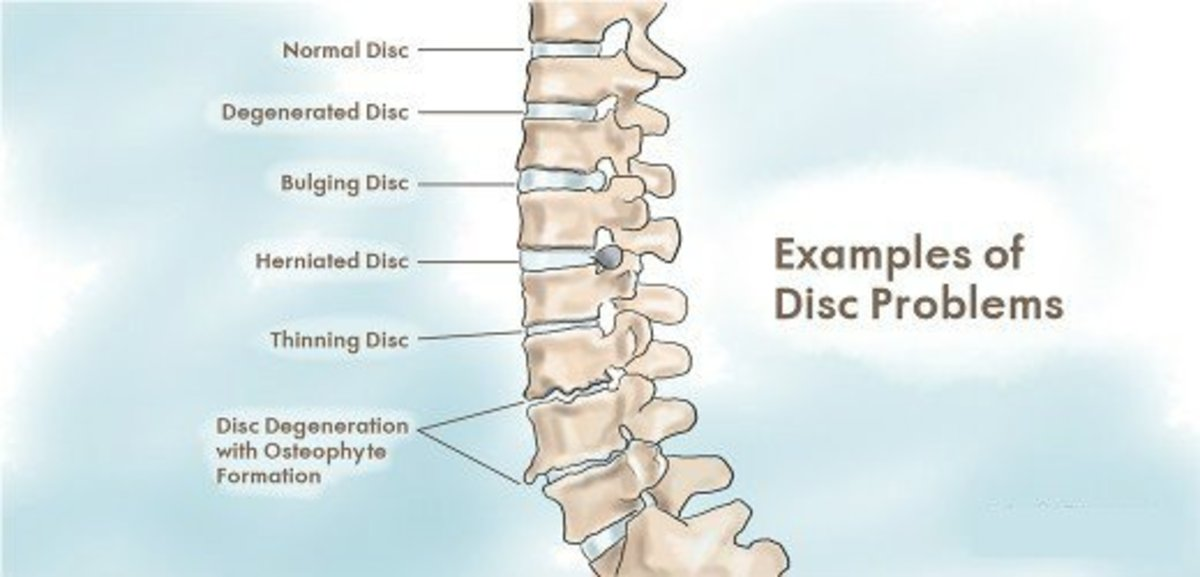 Disc problems that may cause back pain.