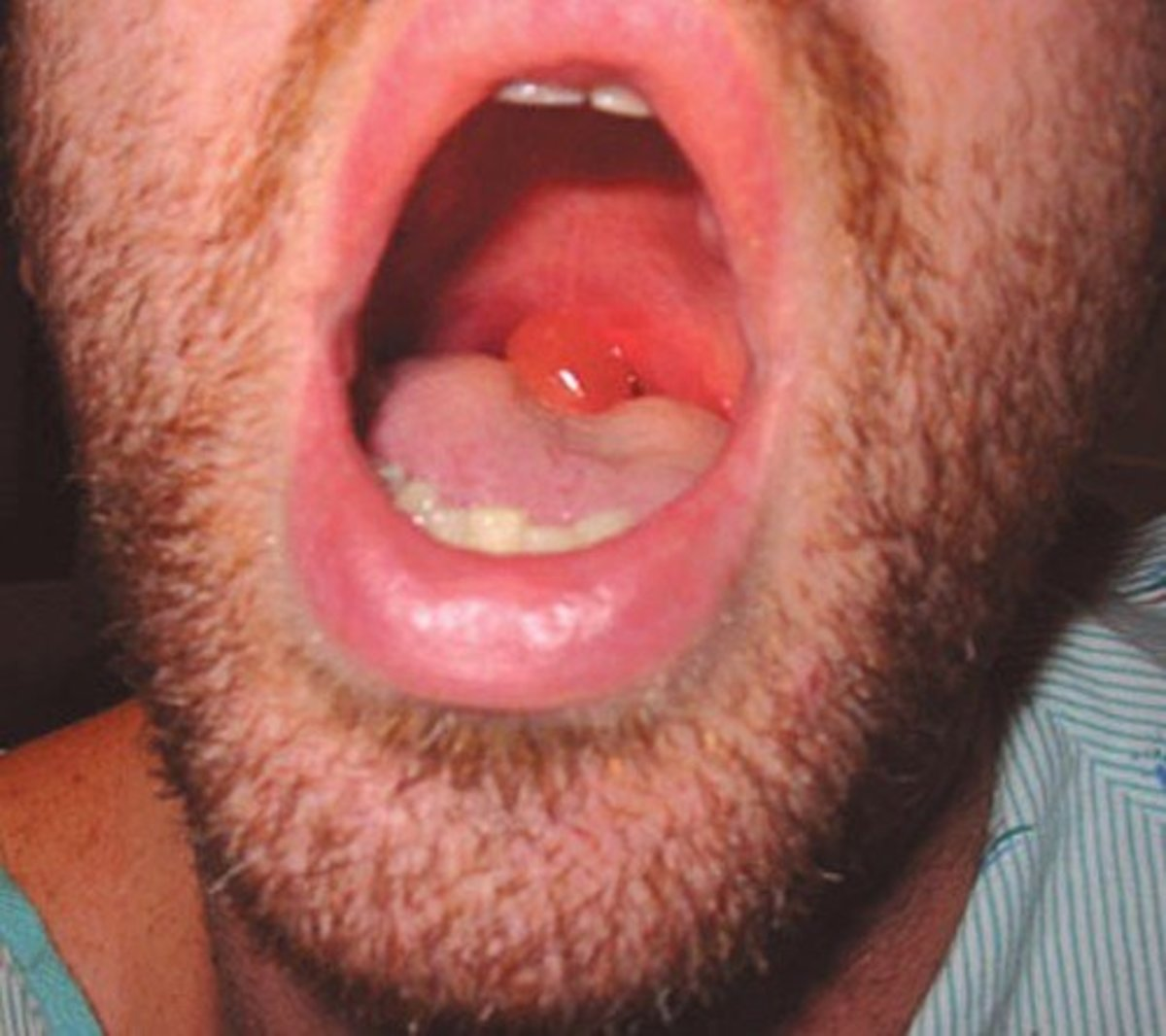 Causes And Treatment For A Swollen Uvula With Pictures Healdove