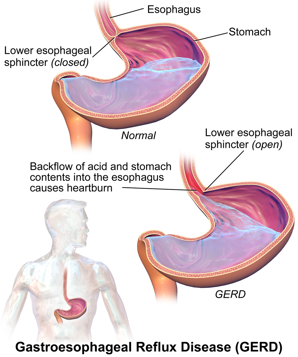 the-causes-of-reflux-disease-in-infants