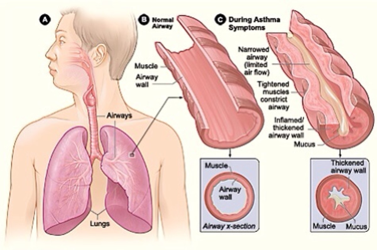 Comparison of a normal airway and an airway during an asthma attack
