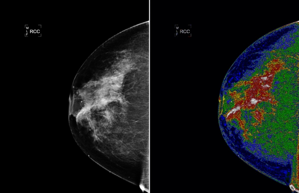 Microcalcifications present as tiny, solid white dots on a mammagram as shown on the top left black and white photo.