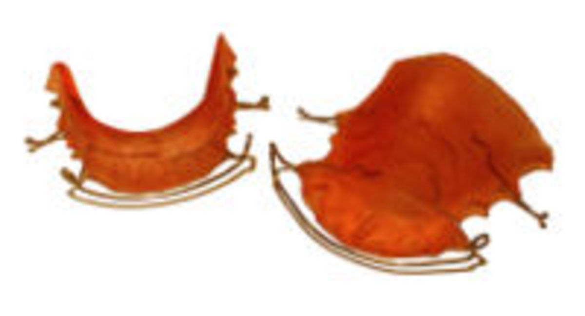 Hawley retainers last longer and can be ordered by mail for a lot less.