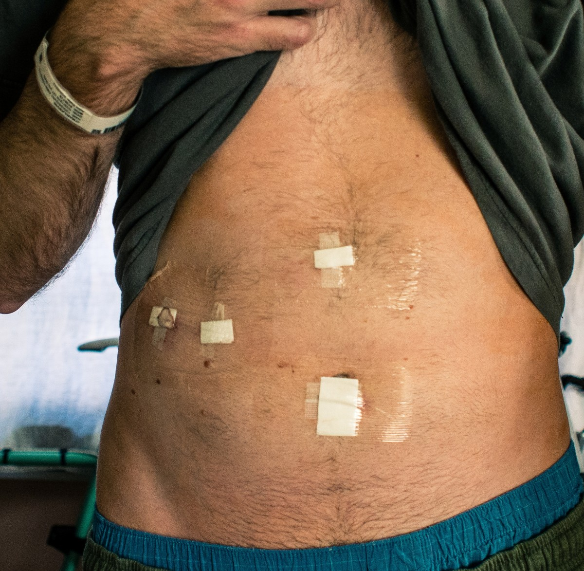 Incisions dressed after the surgery
