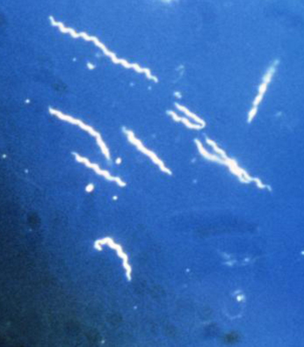 Using darkfield microscopy technique, this photomicrograph, magnified 400x, reveals the presence of several corkscrew-shaped bacteria known as Borrelia burgdorferi