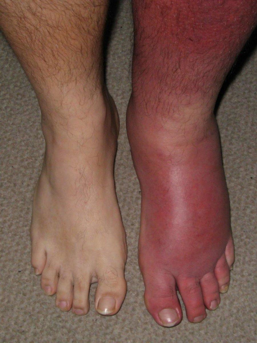 Comparison of Normal VS Leg with Cellulitis
