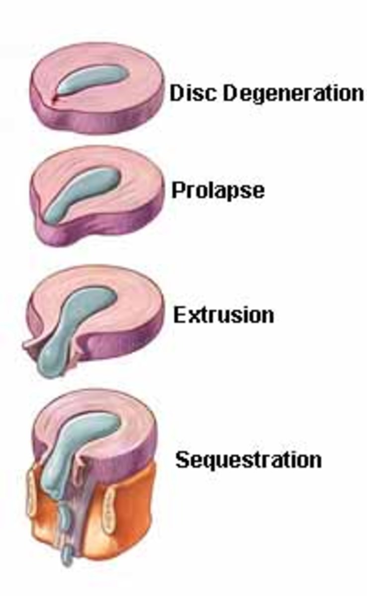 sciatica-causes-symptoms-and-treatment