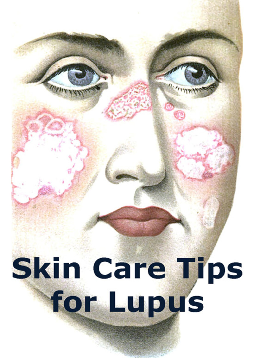 Illustration of woman with lupus rash on her face