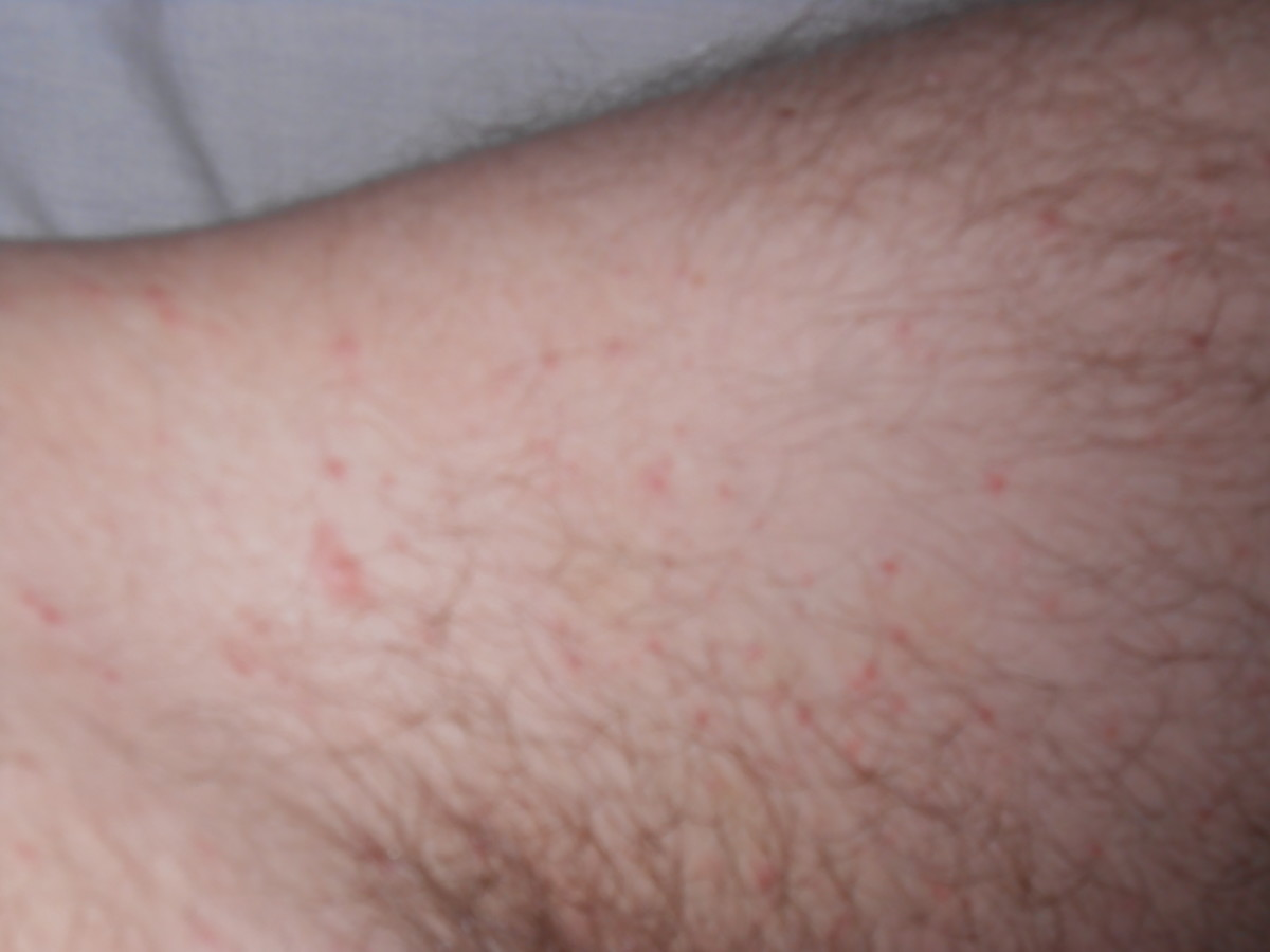 Scabies often affect the groin which can be intensely itchy but socially awkward to itch.