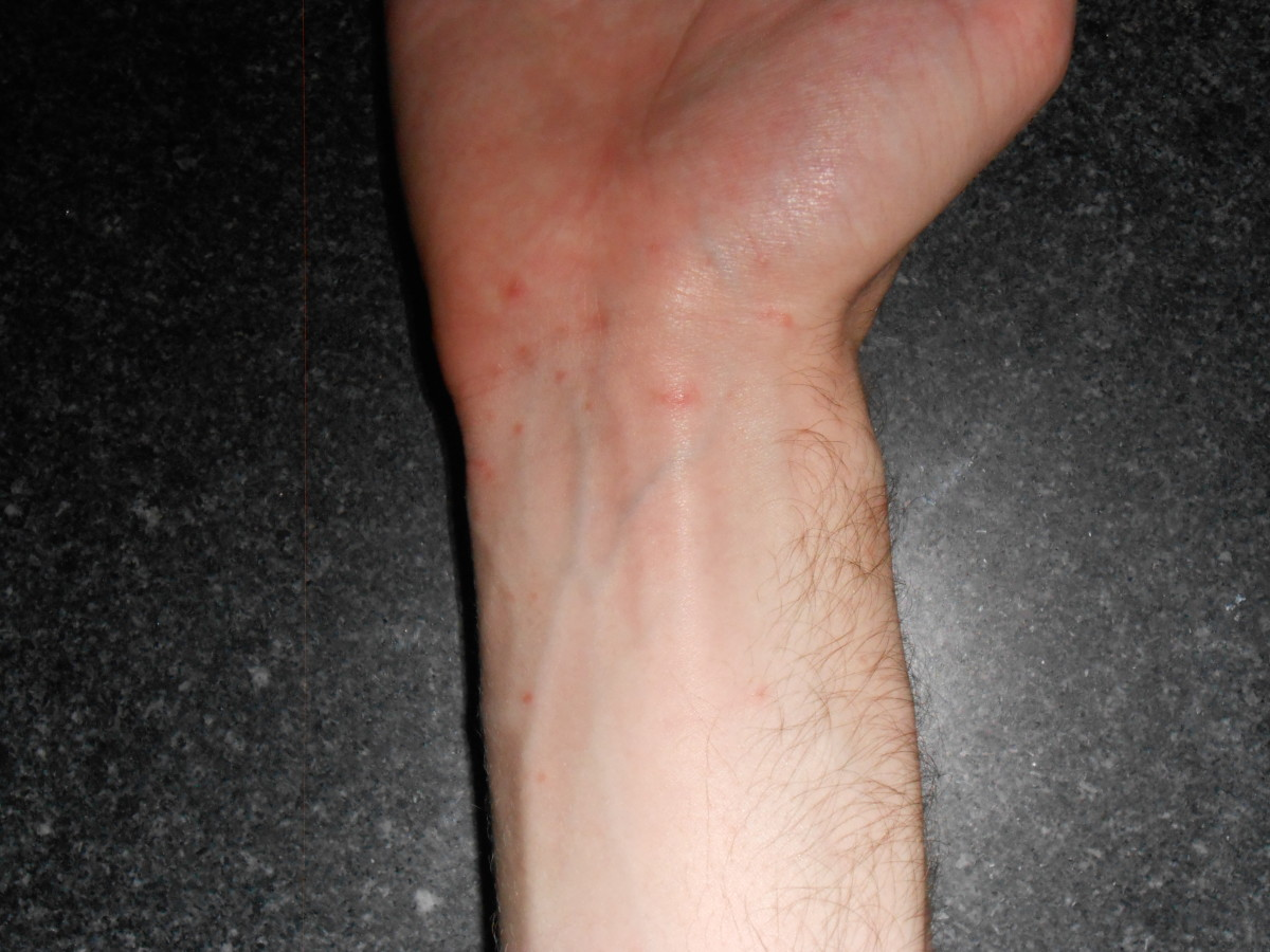 Scabies typically follow a highly predicable pattern: the writs, between the fingers, between the toes, and the groin are extremely common targets for infestation.