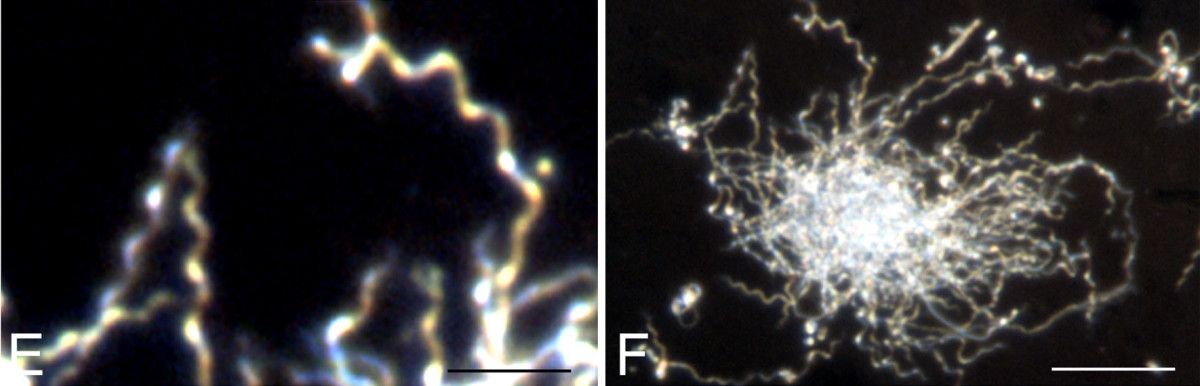 Dark field microscopy images showing the typical spiral form (E) and colony formation (F) of Borrelia burgdorferi