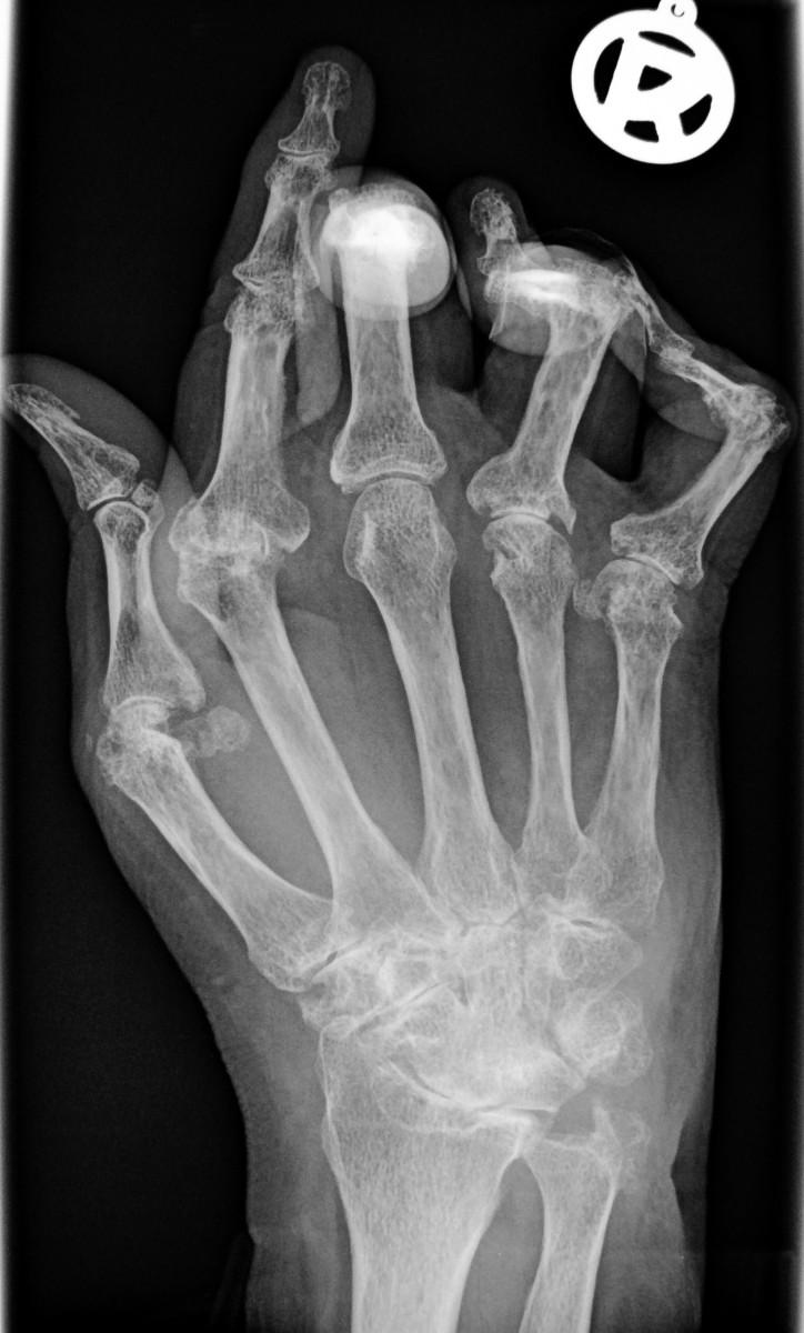 Deformity resulting from advanced rheumatoid arthritis
