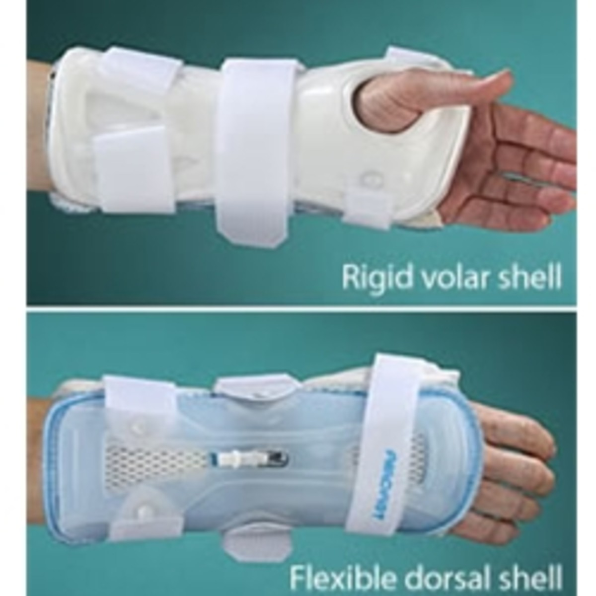 This is the Aircast I got. It can be found at: http://www.dme-direct.com/aircast-stabilair-wrist-orthosis