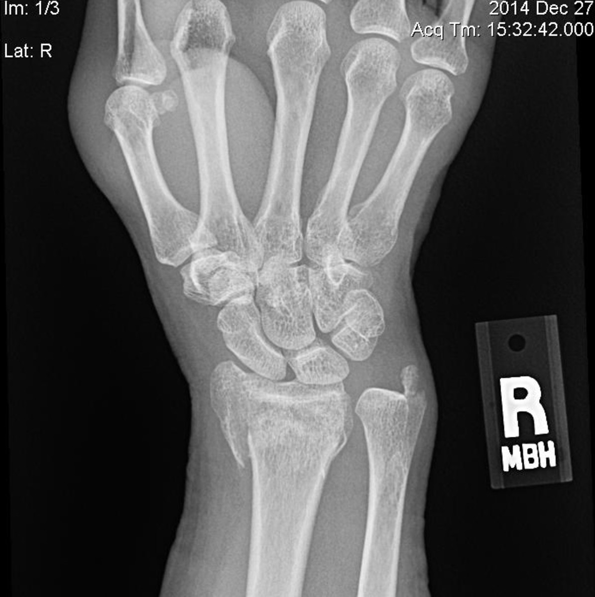 As you can see, my ulna is crushed and my radius is dislocated.