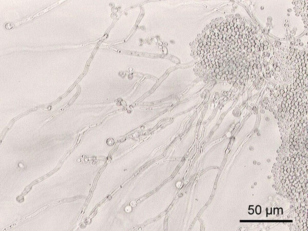 Candida albicans is a fungus that often lives in our gut. It generally exists as single cells but may grow as filaments. It's usually harmless but sometimes causes disease.