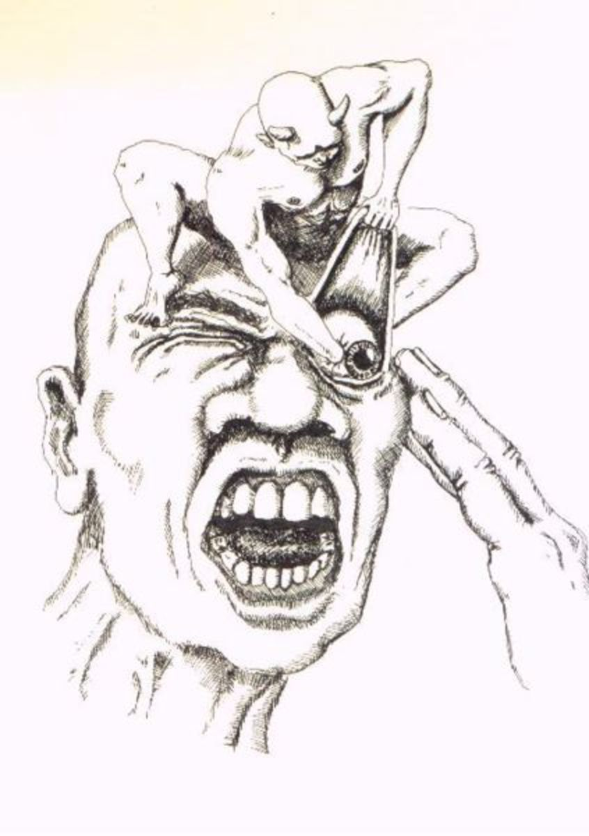 Cluster Headache Illustration
