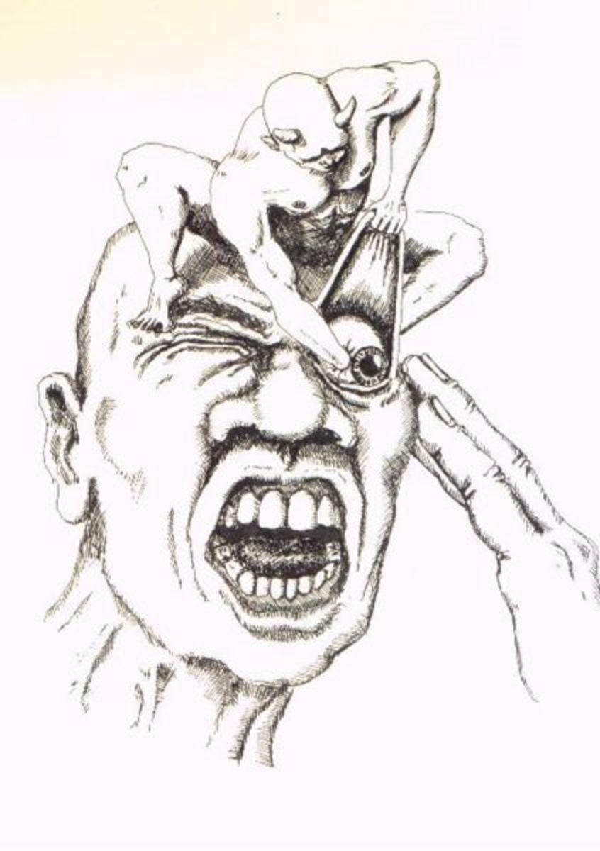 Cluster Headache Illustration