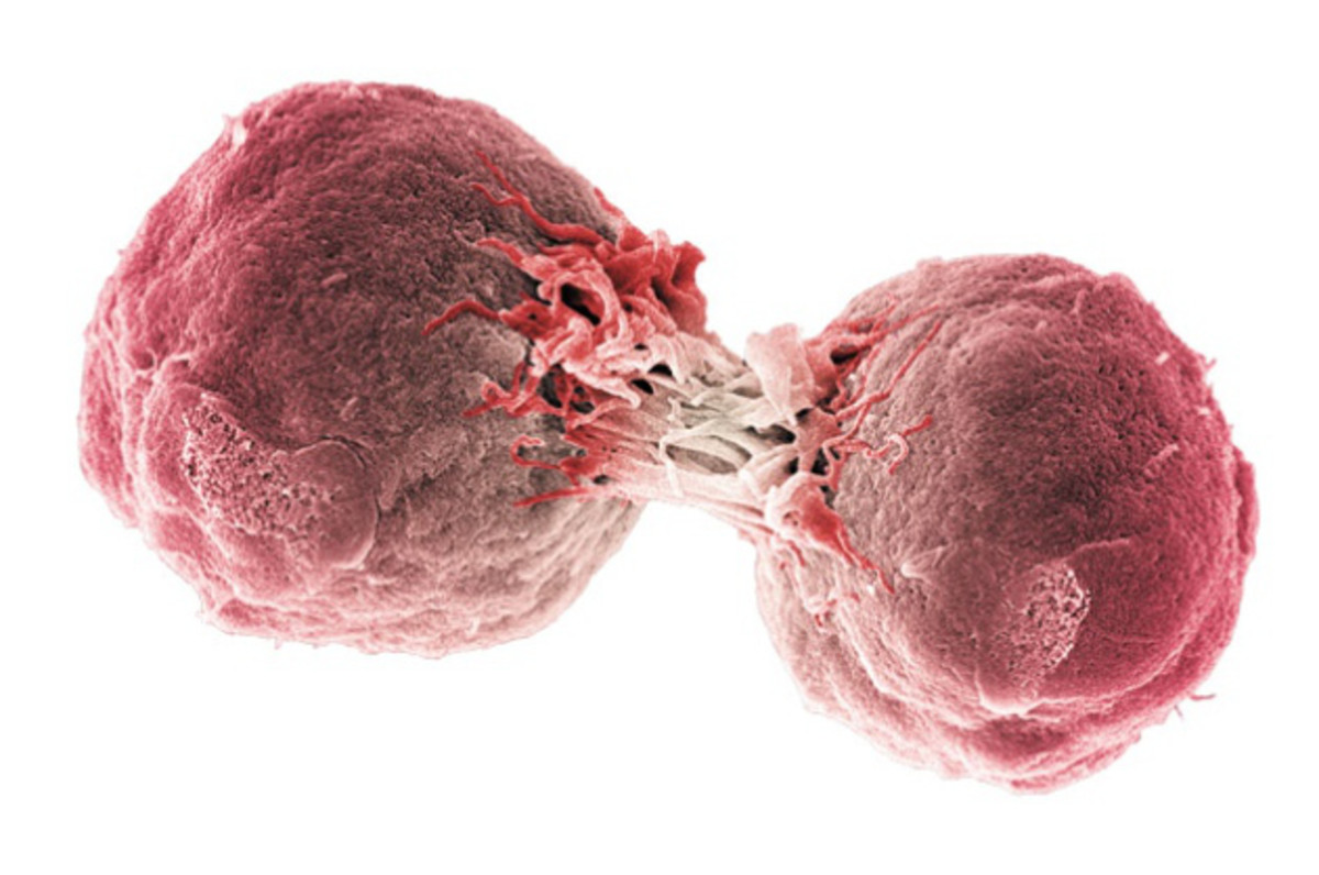 Lymphoma Cell Dividing