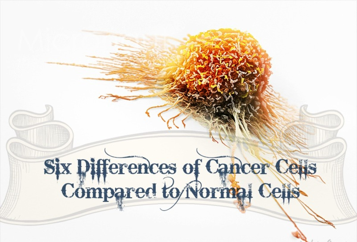 Six Differences of Cancer Cells Compared to Normal Cells