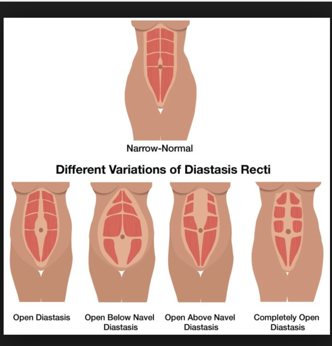 Diastasis Recti Or Why I Can T Seem To Get Rid Of My
