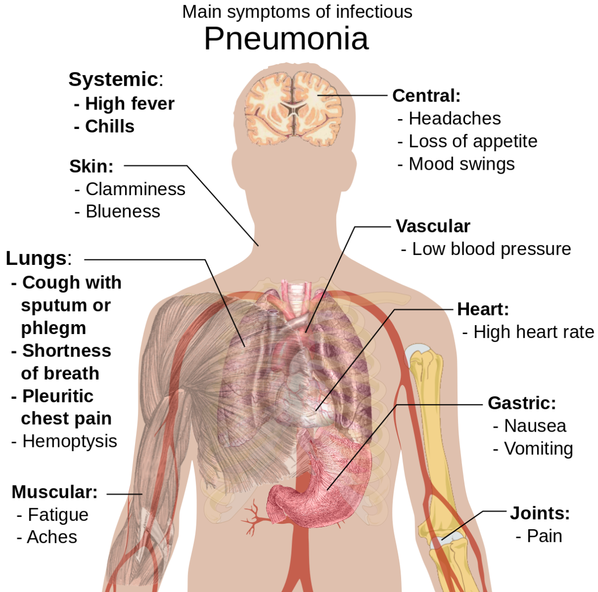 Possible symptoms of pneumonia