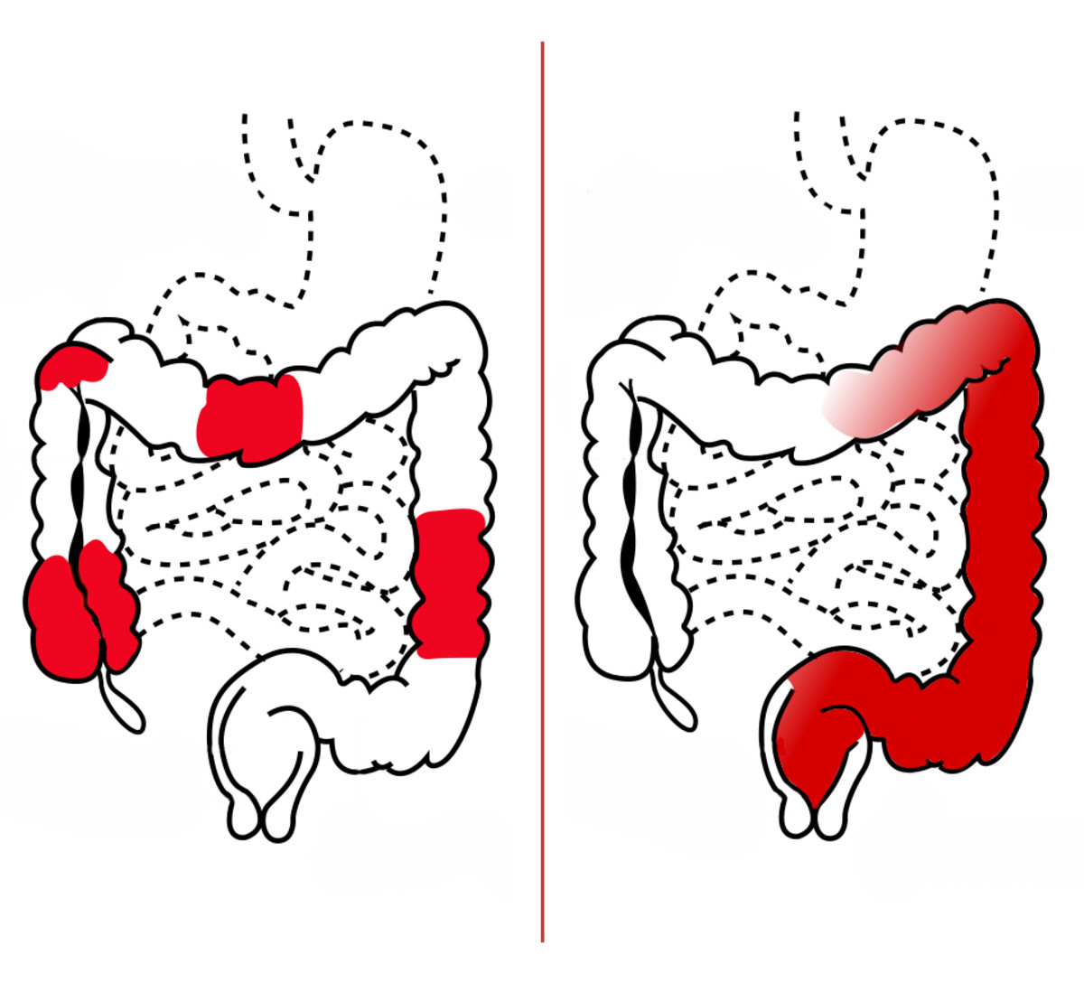 Crohn's disease (left) affects the large intestine differently than ulcerative colitis (right).