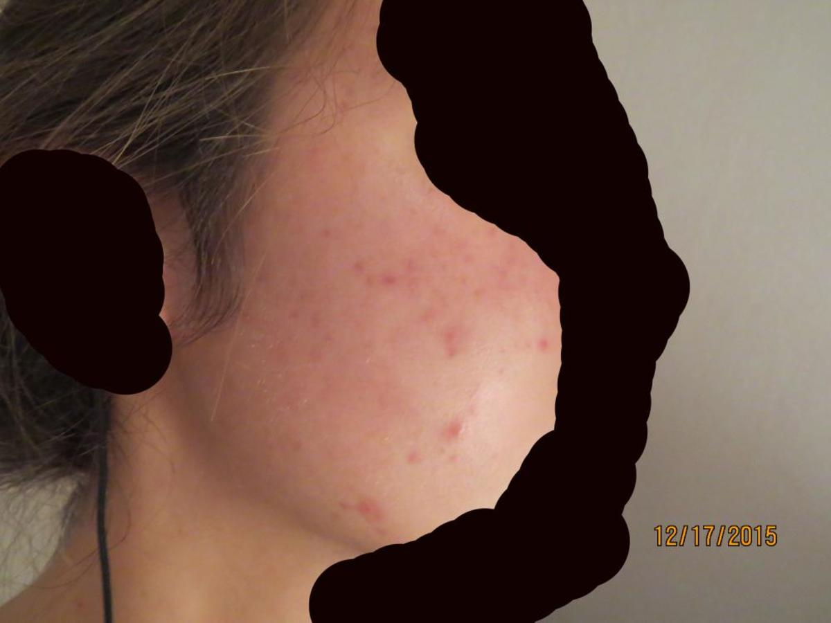 Skin before Accutane: persistent acne.