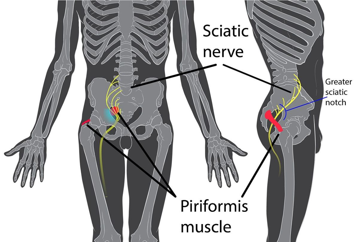 Muscular Conditions Major Causes Of Inner Thigh Pain