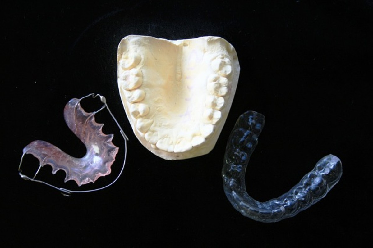 Cosmetic dentistry and 3D printing.