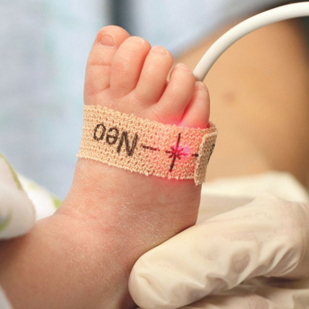 Blood Oxygenation in Newborns: More Complicated Than You Think