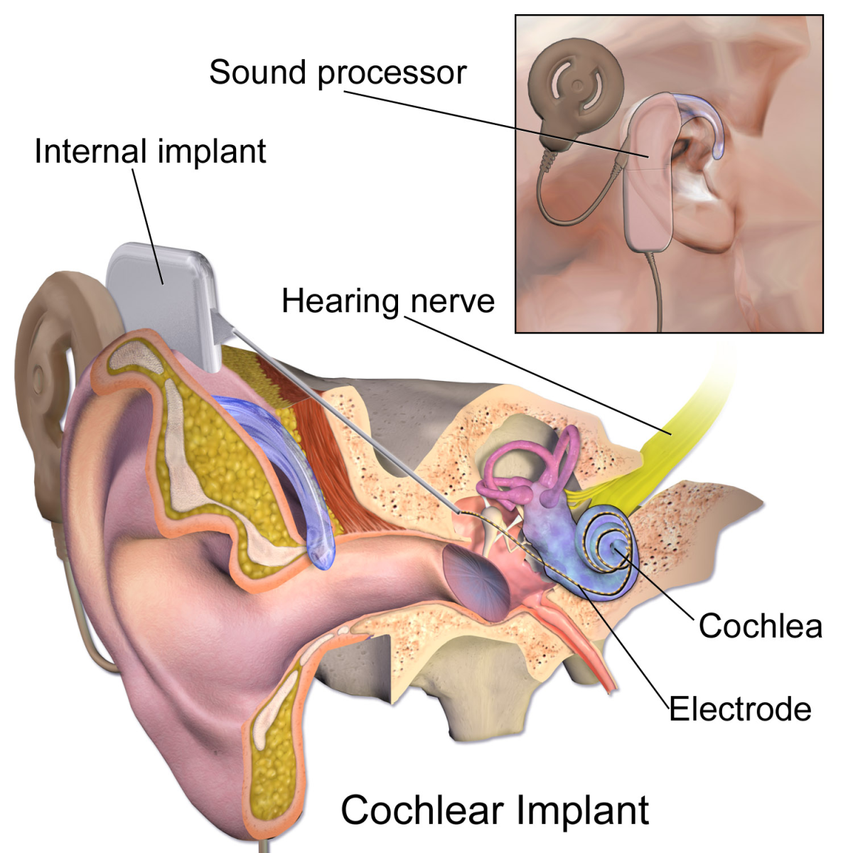 Parts of a cochlea implant