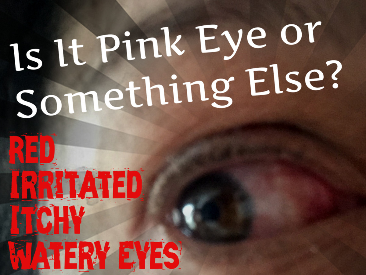 Are your eyes red, irritated, itchy, watery, crusty, and making you miserable? Learn the difference between pink eye, allergies, and more serious medical problems.