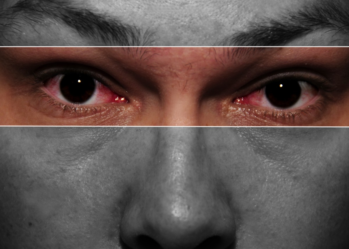 Bloodshot (or red) eyes can have many causes.