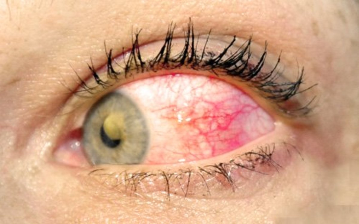 Scleritis feels as bad as it looks.  The redness can be diffuse or concentrated in a pie shape, as in this photo.  Pain is deep and penetrating.